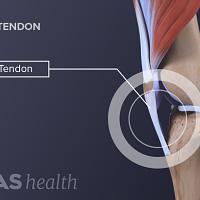 Illustration of patellar tendon