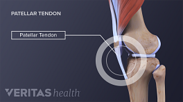 Profile view of the knee labeling the patellar tendon.