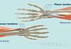 Illustration of the flexor and extensor tendons