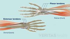 Wrist Tendonitis: An Overview