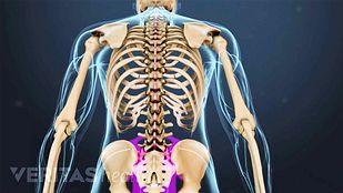 Myofascial Pain