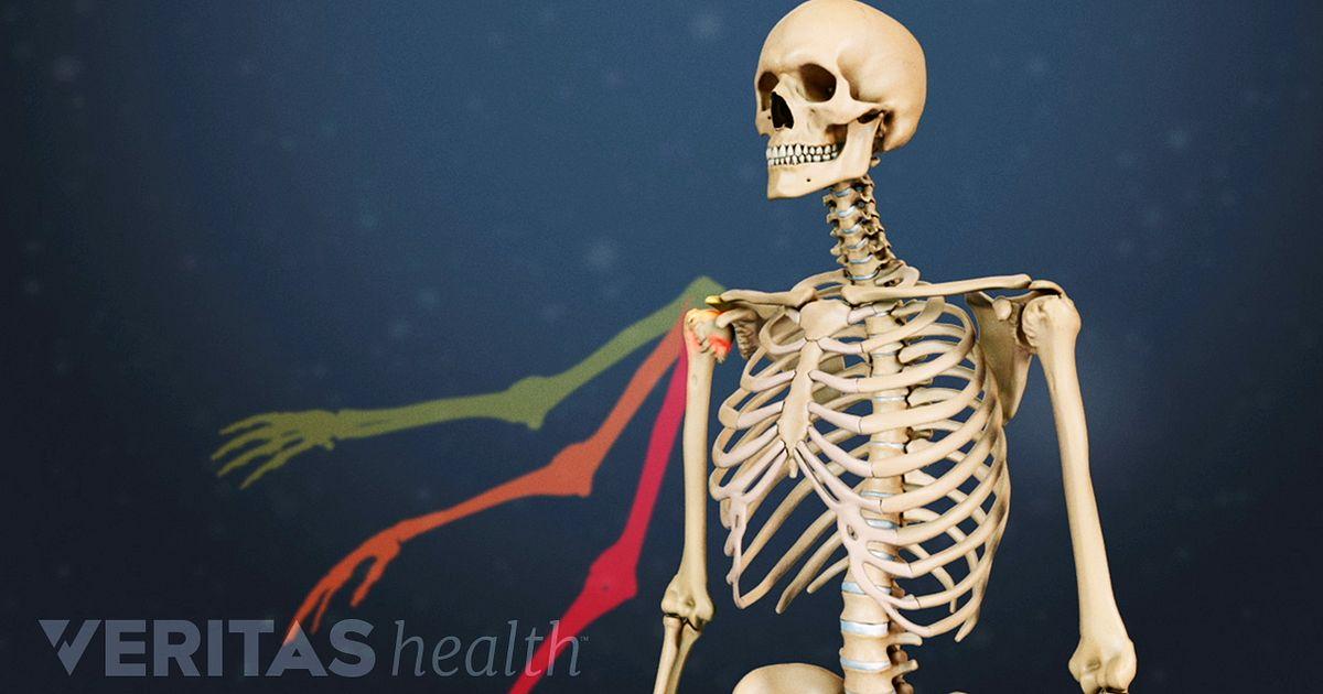 Shoulder Osteoarthritis Video Arthritis Health