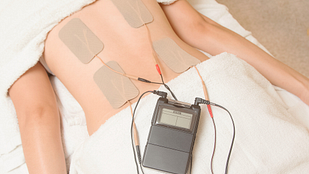 Image of tens unit applied to a lower back