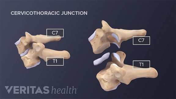 Cervical pain may be caused by natural spinal degeneration of the C7-T1 spinal segment overtime.
