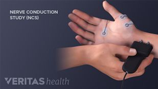Carpal tunnel syndrome treated with nerve conduction velocity test.