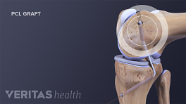 Profile view of knee joint showing a PCL graft
