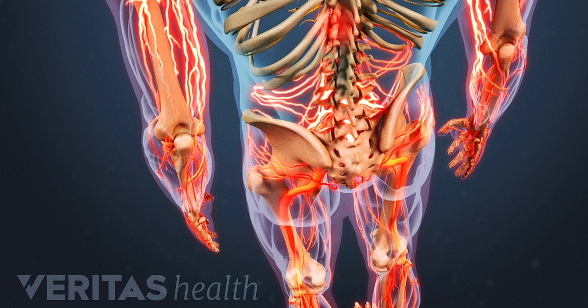 What to Expect from Spine Surgery for Low Back Pain
