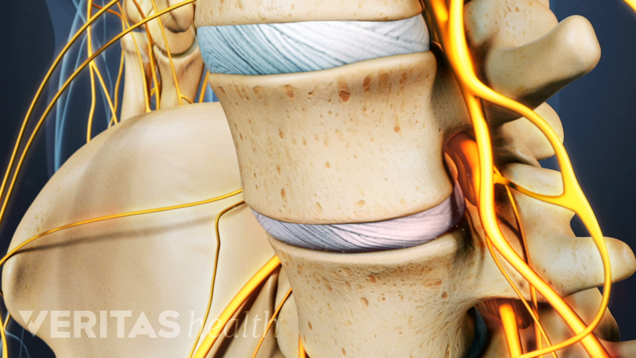 Anterior view of the lumbar spine with a degenerated disc causing nerve pain.