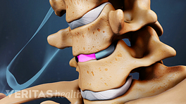 Anterior view of the cervical spine with artificial disc in between two vertebrae.