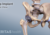 Medical illustration of side view of hip arthroplasty