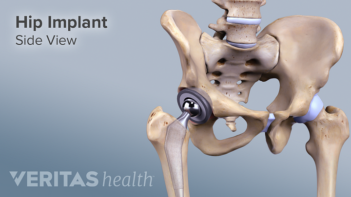 Total Hip Replacement for Hip Arthritis