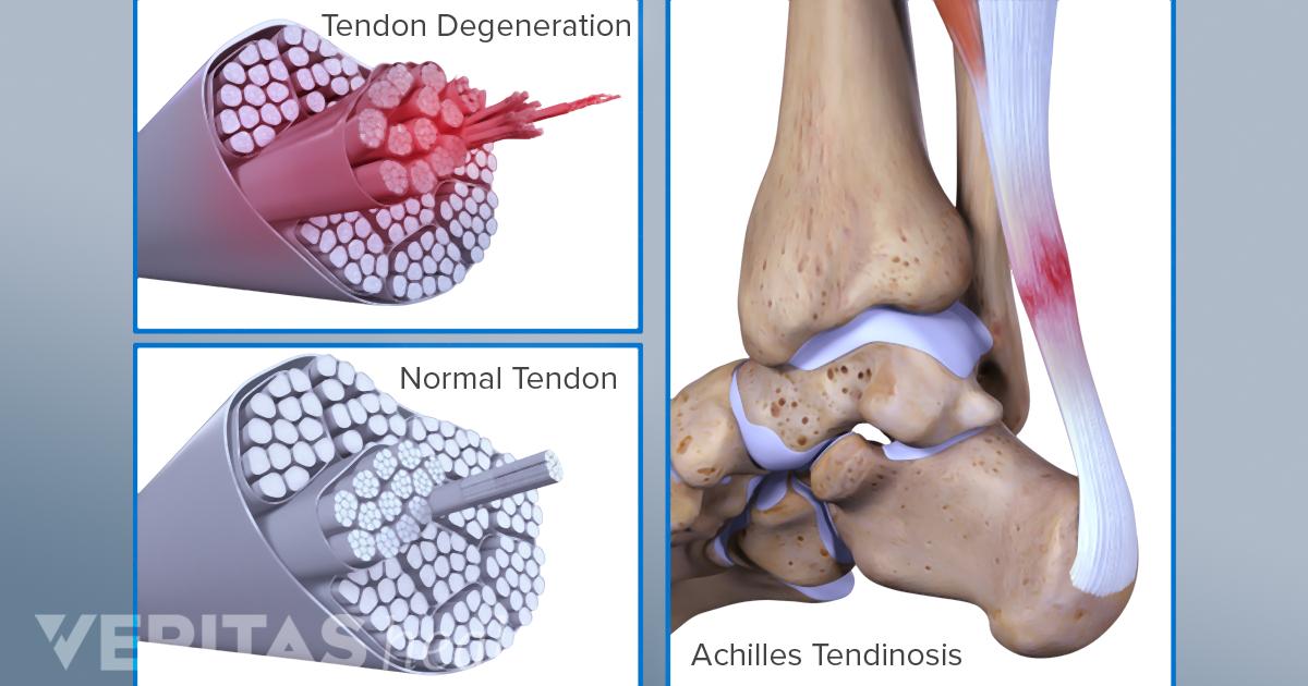 Causes And Risk Factors For Achilles Tendon Damage
