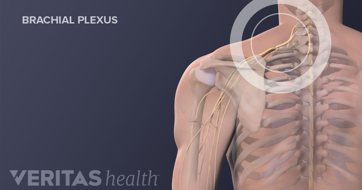 the possible causes of brachial neuritis Learn more about brachial plexus the most common causes this patient had a bright irregular nerves of normal caliber suggestive of a radiation neuritis.