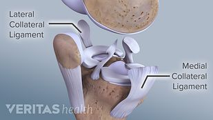 Profile view of the knee joint expanded to show the MCL and LCL.
