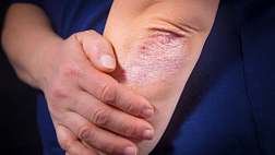 Image of psoriasis on the elbow