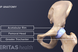 Medical illustration of the hi[ joint including the acetabular rim, femoral head, greater trochanter