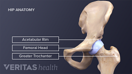 Medical illustration of the hip joint including the acetabular rim, femoral head, greater trochanter