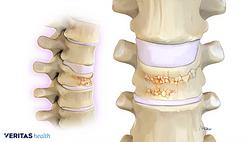 Illustration of a vertebral compression fracture