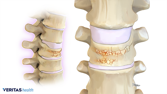 Profile and anterior views of vertebral compression fractures from osteoporosis