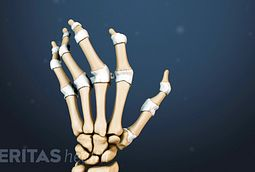 Is Joint Pain Rheumatoid Arthritis or Autoimmune Disorder