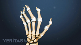 Illustrated skeletal view of a hand with rheumatoid arthritis deformities