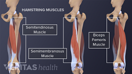 Hamstring anatomy showing the muscles and bones.