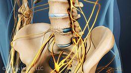 Anterior Lumbar Interbody Fusion Video