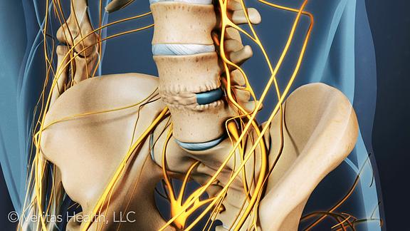 Healing bone graft from ALIF in the lumbar spine.