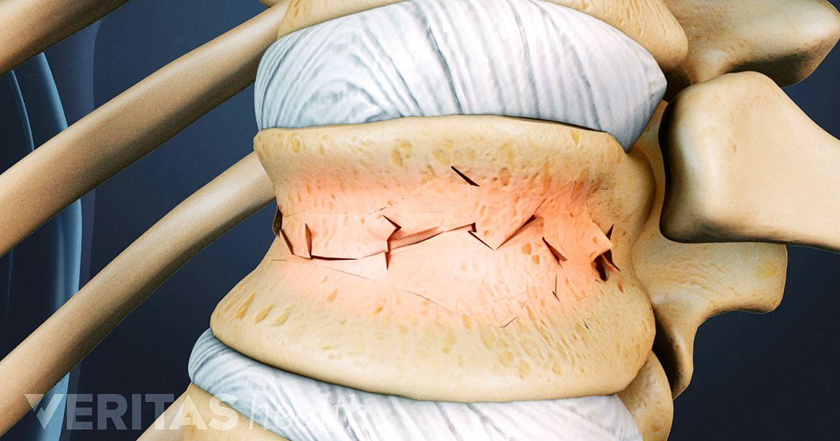 Vertebral Fracture Symptoms