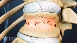 Vertebra with a fracture in the vertebral body.