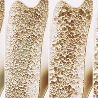 Four bones side by side with varying bone density.