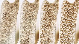 Four stages of bone density in osteoporosis.