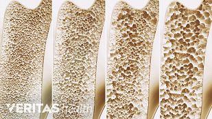 Ostroporosis