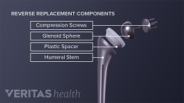 Illustration of the components of an artificial shoulder joint used in reverse shoulder arthroplasty
