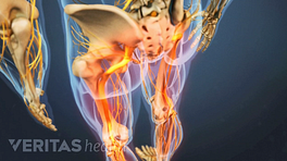 Medical illustration of the lower body showing bones and nerves. The sciatic nerve is highlighted in red, indicating pain, numbness or tingling.