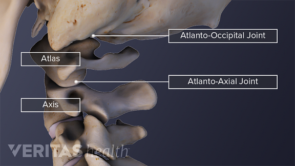 Illustration of the C1-C2 vertebrae atlas and axis