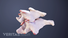 Cervical Bone Spurs Symptoms and Causes Animation