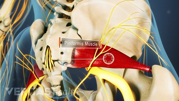 Piriformis muscle and sciatica