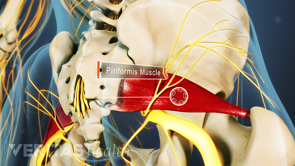 Posterior view of the pelvis highlighting the piriformis muscle.