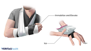 Wrist in a sling to immobilize and elevate and someone icing wrist with a brace