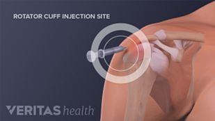 Injection for a rotator cuff tear