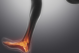 Image of an ankle xray