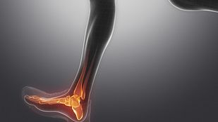 View of the leg showing pain in the ankle joint.