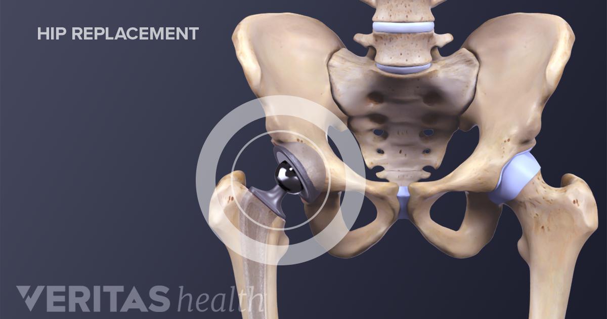 Anterior vs  Posterior Hip Replacement Surgeries