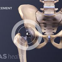 Anterior view of the pelvis showing the components of a hip replacement.