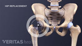 Front view of a medical illustration showing a hip replacement implant