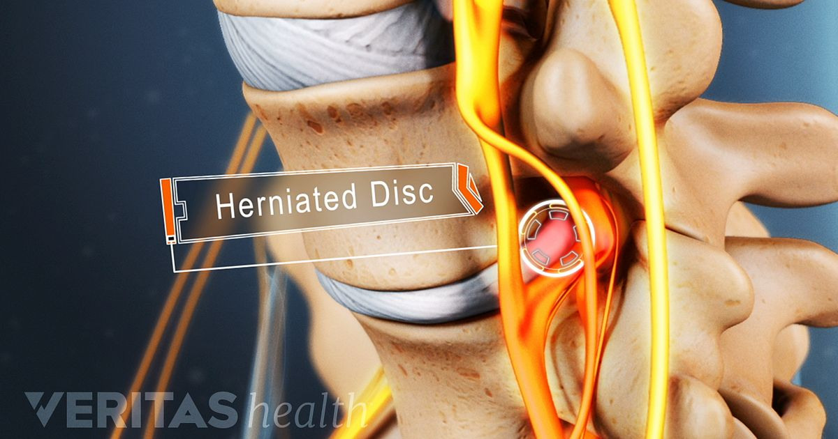 Exercises To Avoid With A Lumbar Herniation