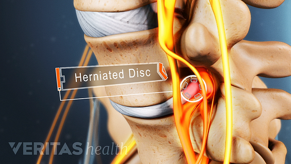 Animated video still of lumbar herniated disc compressing a sciatic nerve root