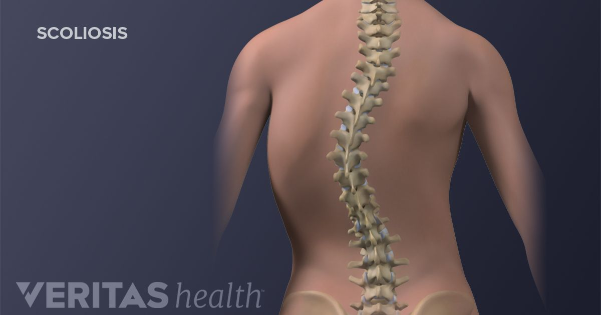 scoliosis definition | back pain and neck pain medical glossary, Human Body