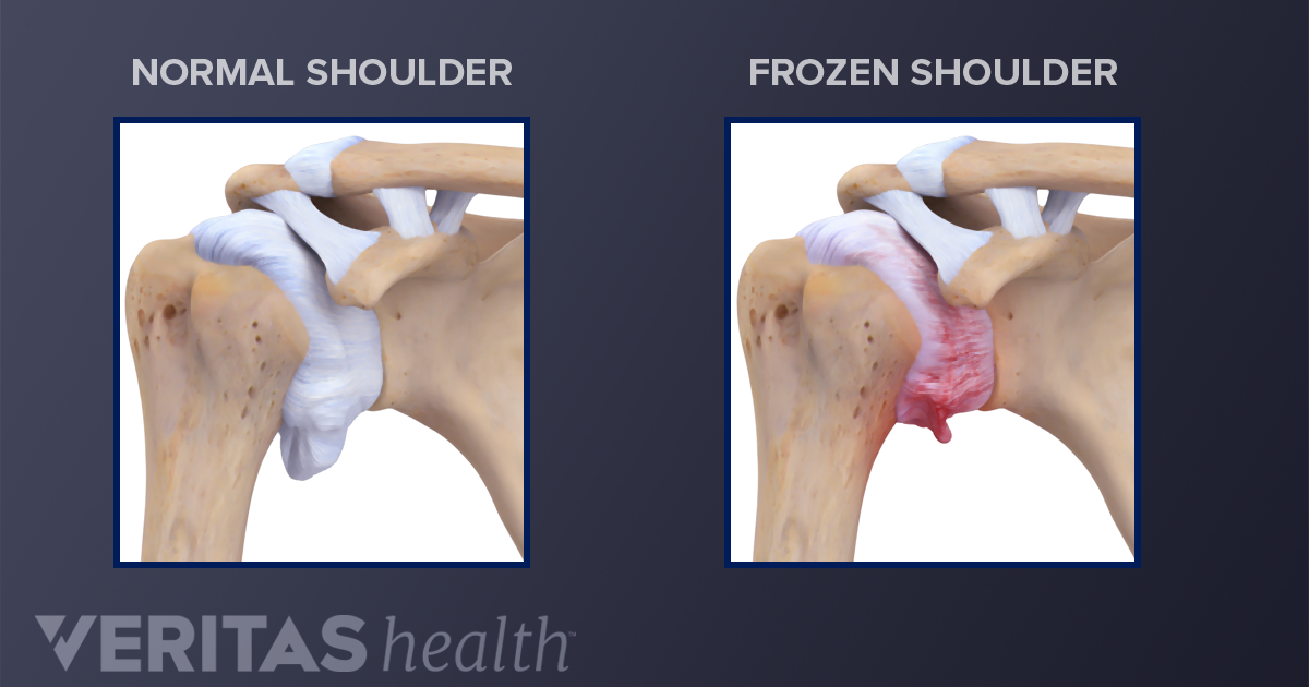 Adhesive Capsulitis Definition Sports Injury Related